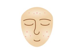 na mastnou pokožku se sklonem k akné